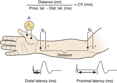 The Electrodiagnostic Examination | Clinical Gate