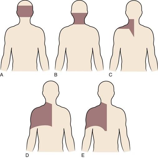 cervical spondylosis with retrolisthesis