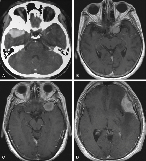 surgical management of sphenoid wing meningiomas | clinical gate, Human Body