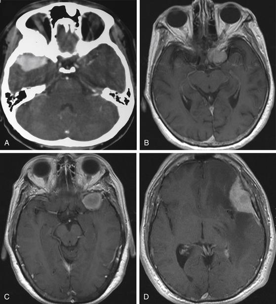 sphenoid bone meningioma – citybeauty, Human body