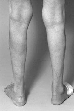 tcs spina bifida Update on Spina Bifida Management at Mayo Clinic