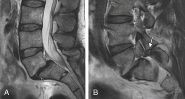 retrolisthesis of l5 s1 Retrolisthesis is reverse spondylolisthesis brought on by the effects of disc degeneration and usually occurs at the l3-4, l4-5, or l4-5 levels.