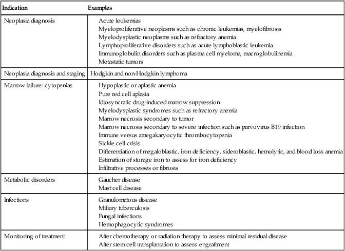 Bone Marrow Examination   Clinical Gate