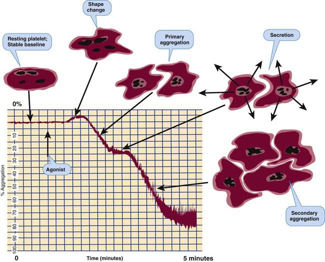 Laboratory Evaluation of Hemostasis | Clinical Gate