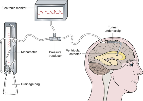 Image result for modern ventricular catheter