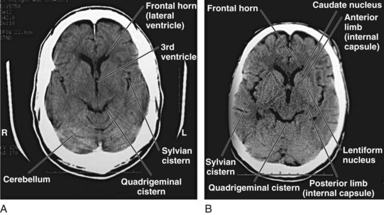 Imaging Of The Central Nervous System Clinical Gate