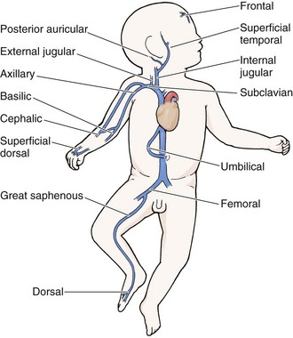 leg injection sites for steroids