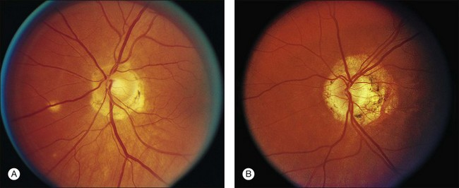 Clinical Gate  Presumed Ocular Histoplasmosis