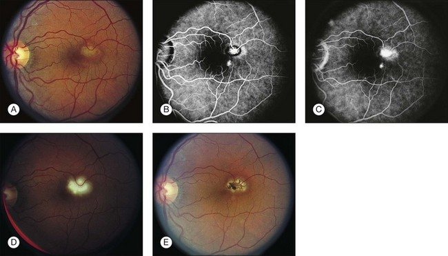 70.4 (A) Choroidal Neovascularization (CNV) Secondary To Ocular  Histoplasmosis With Subretinal Fluid In The Macula. (B) Extrafoveal CNV Is  Visible On This ...