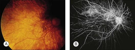 Photograph A And Fluorescein Angiogram B Show Diffuse Pigmentary Choriocapillaris Atrophy Optic Vascular Attenuation