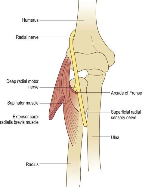 Radial Neuropathy Clinical Gate
