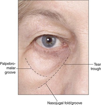 Infraorbital hollow and nasojugal fold | Clinical Gate