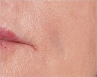 Complications of temporary fillers   Clinical Gate
