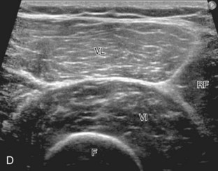 Hip and Thigh Ultrasound | Clinical Gate