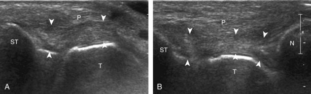 Ankle, Foot, and Lower Leg Ultrasound | Clinical Gate