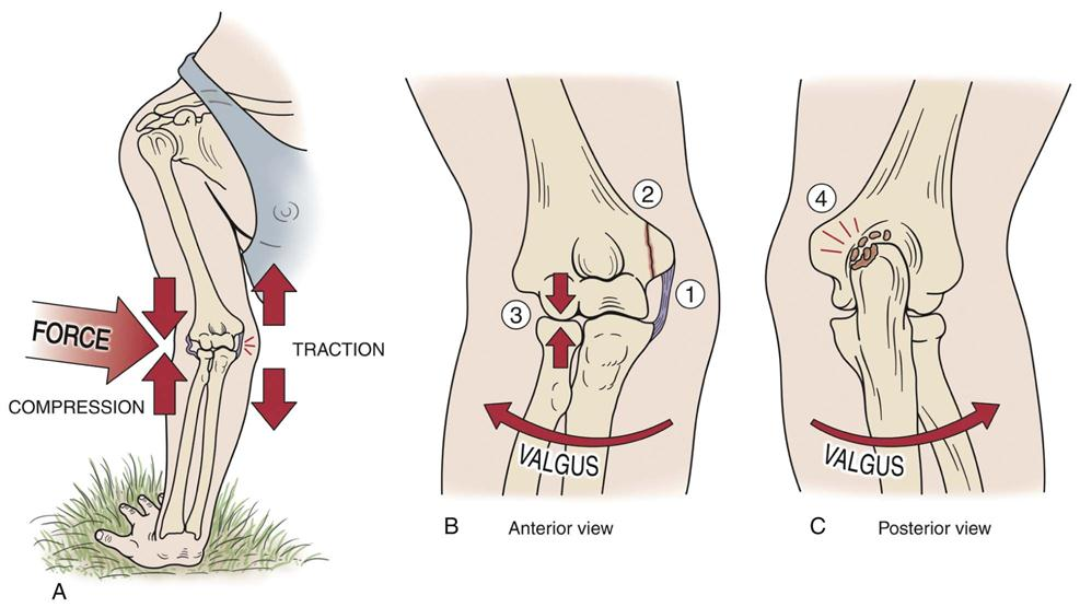 Elbow   Clinical Gate