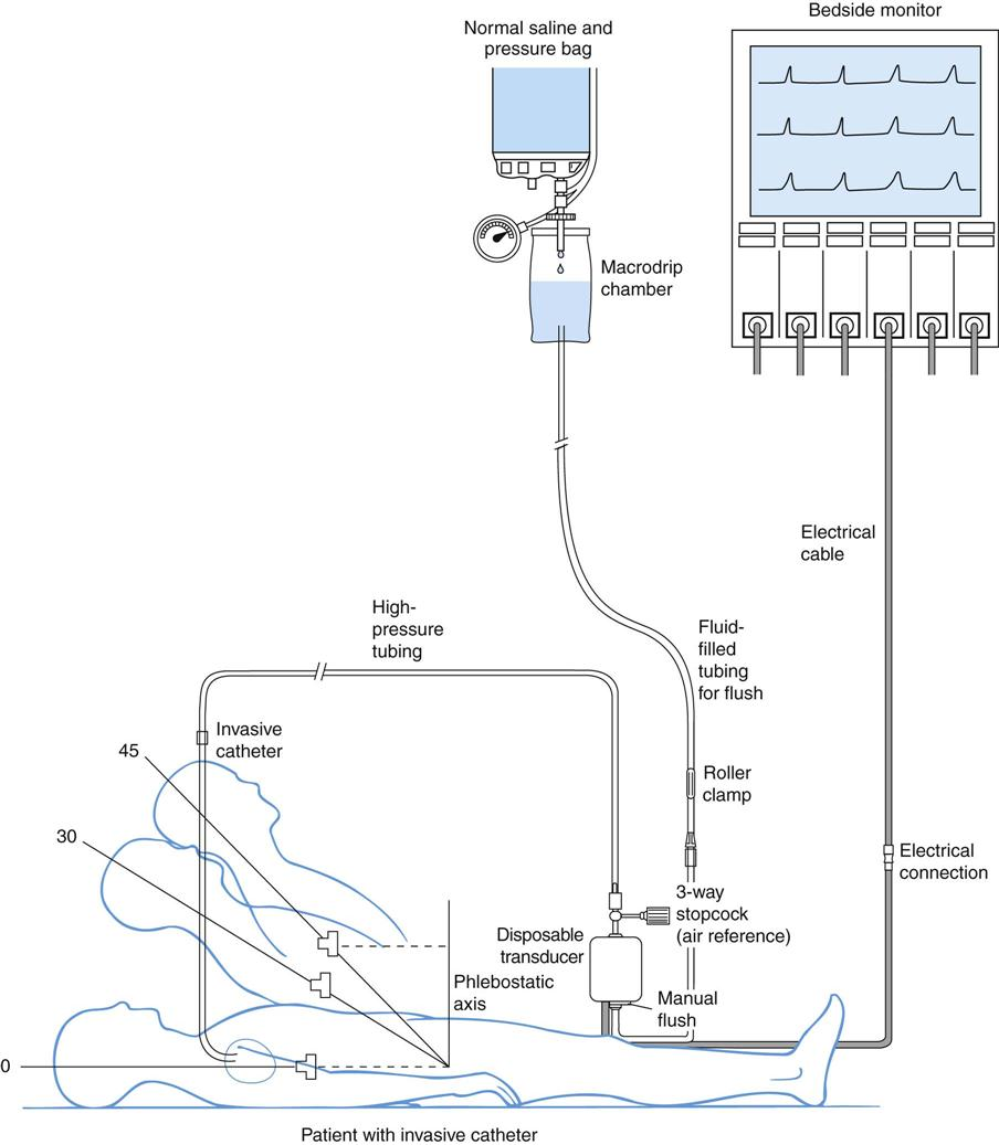 Cardiovascular Monitoring System : Parts of a cardiac monitoring systems electrical schematic