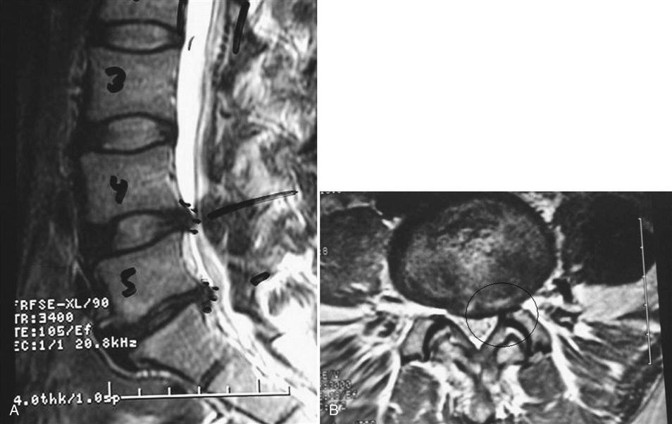 image - Microdiscectomy Recovery Time Frame