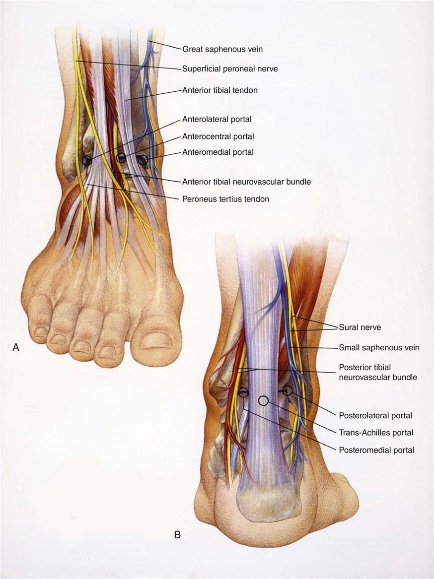 Ankle Arthroscopy Clinical Gate