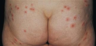 Pseudomonas Folliculitis Clinical Gate