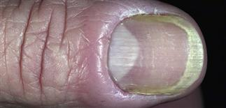 Lateral Nail Fold Problems Best Designs 2018