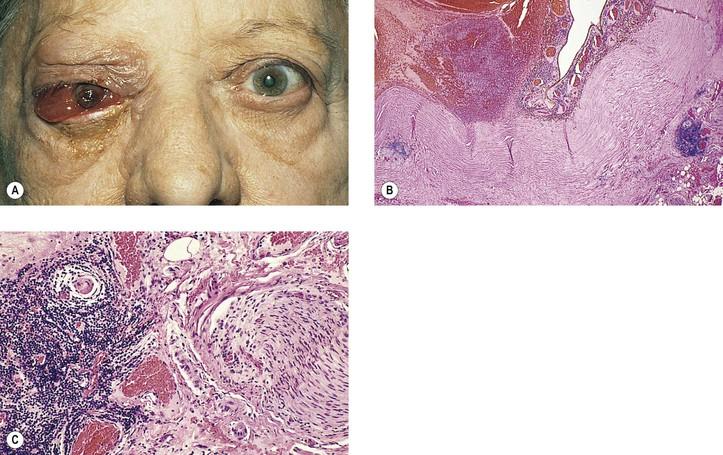 acido urico causas alimentos que hacer para evitar el acido urico dieta y acido urico pdf