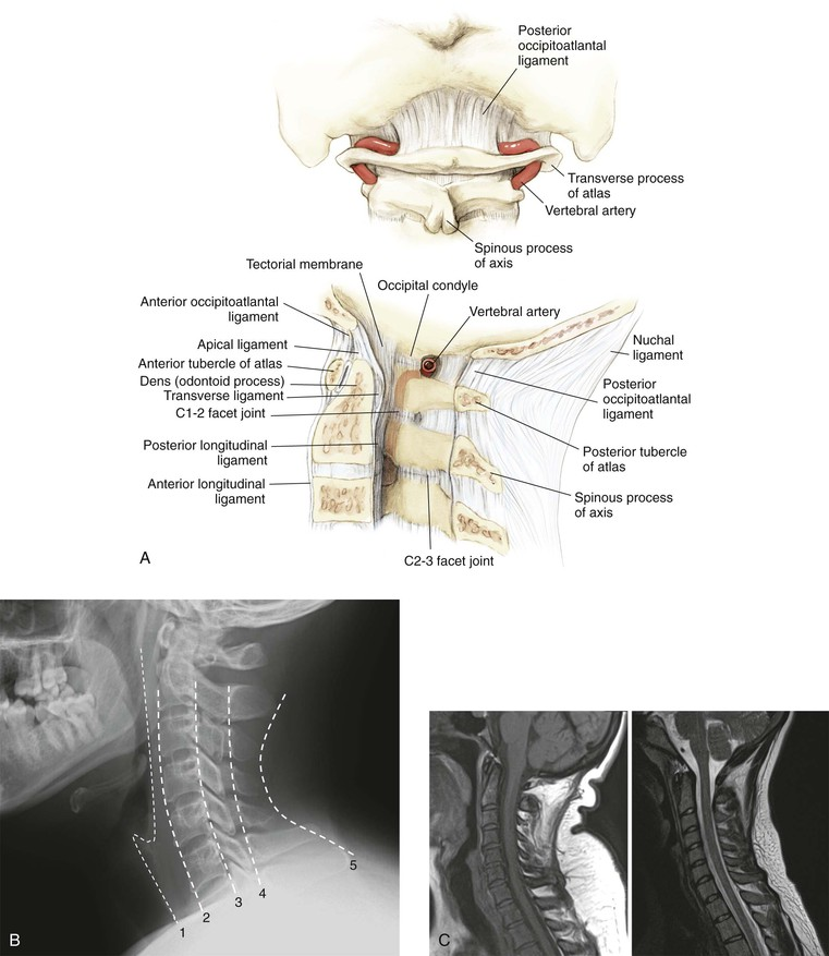 Spine | Clinical Gate