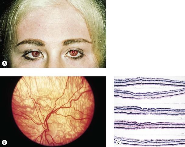 Gene: 14q11/NRL neural retina leucine zipper; D14S46E