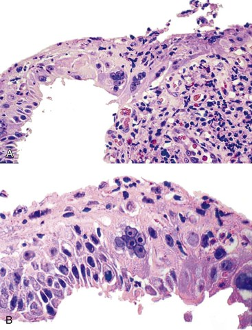 Inflammatory Disorders of the Esophagus | Clinical Gate
