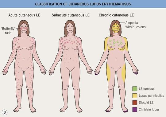 lupus erythematosus   clinical gate, Skeleton