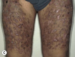 Cutaneous Signs of Drug, Child, and Elder Abuse   Clinical Gate