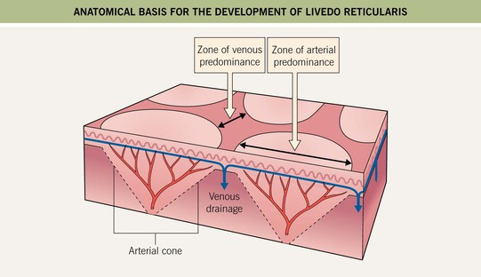 Other Vascular Disorders | Clinical Gate