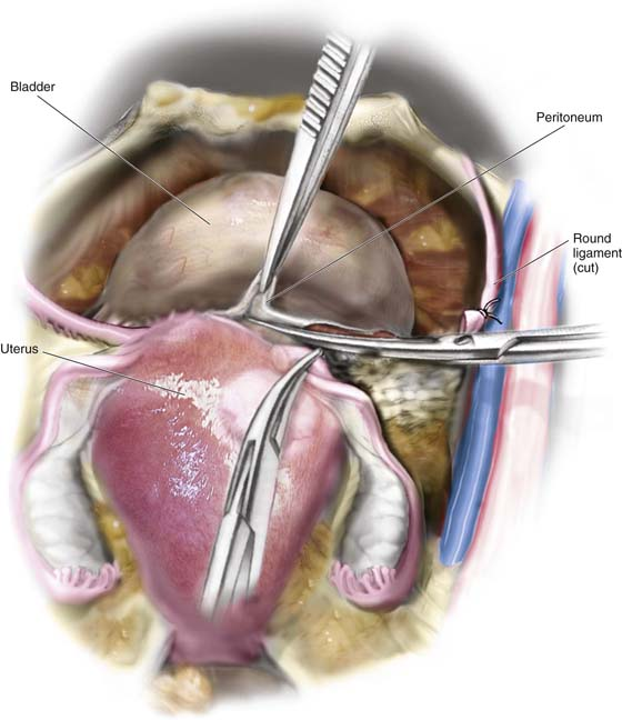 case study on total abdominal hysterectomy bilateral saphingoopherectomy Total abdominal hysterectomy and bilateral salpingo-oophorectomy were performed together with intraoperative frozen section procedure primary uterine lymphoma of the uterine cervix in advanced age /.