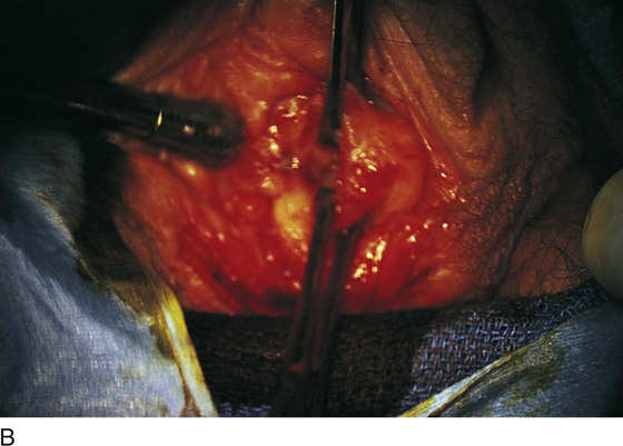 Iatrogenic vaginal constriction