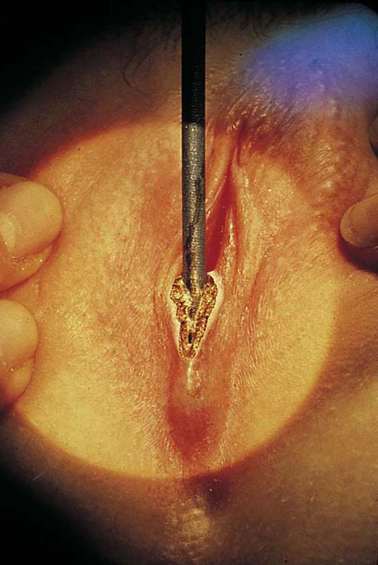 inverted-vulva-surgery