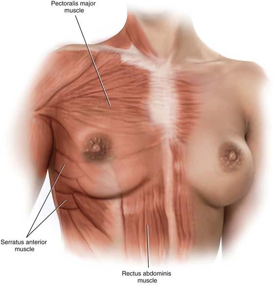 FIGURE 105–2 The breasts are contained within the superficial pectoral  fascia and lie on the deep fascial layer that encloses the pectoralis major  muscle.