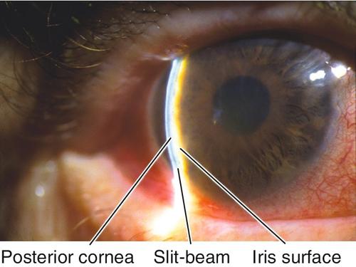 Dissertation on glaucoma