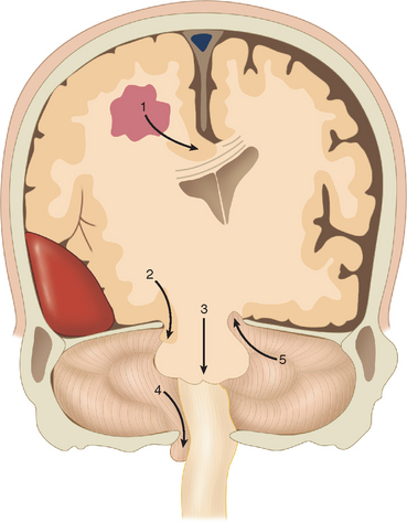 figure 8 3 schematic diagram showing the various types of brain herniation 1 subfalcine or cingulate herniation in this case caused by an adjacent tumor