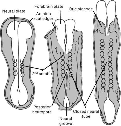 the congenital defect of spina bifida Spina bifida definition, a congenital neural tube defect in which part of the meninges or spinal cord protrudes through the spinal column.