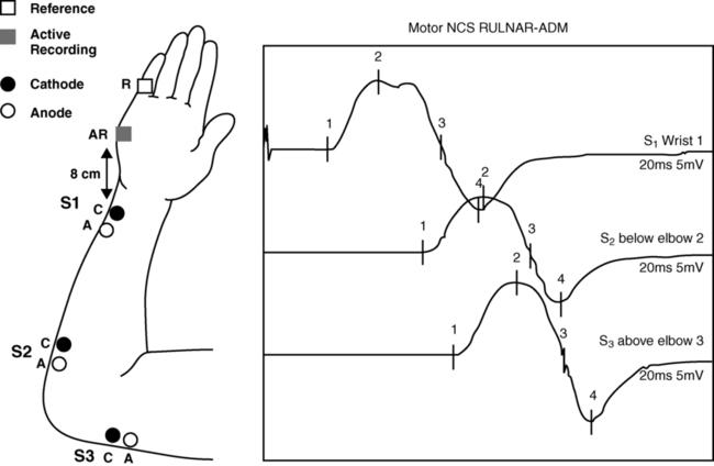 Emg facial nerve test