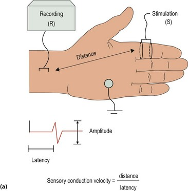 Nerve conduction studies and electromyography | Clinical Gate