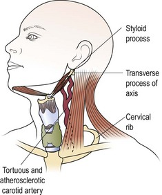 Head and Neck Neoplasia | Clinical Gate