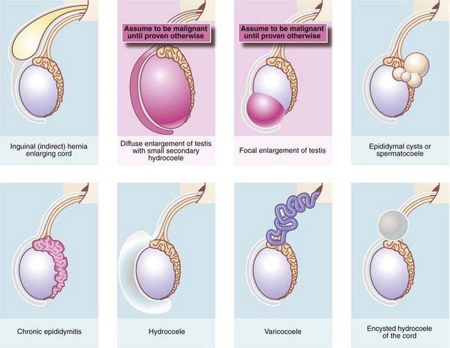 how to tell if you have testicular torsion