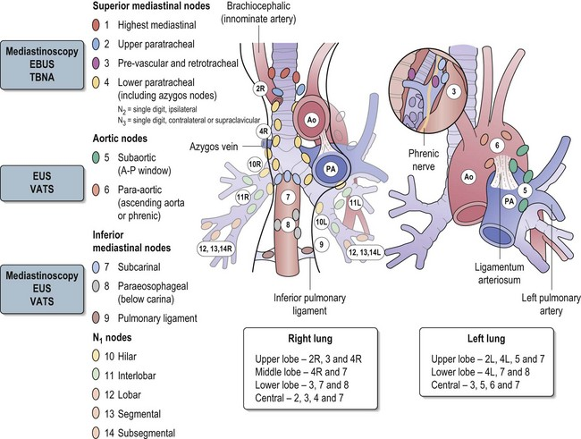 Cancers Of The Thorax Clinical Gate