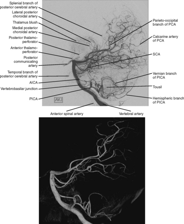 Clinical Anatomical Syndromes Of Ischemic Infarction Clinical Gate