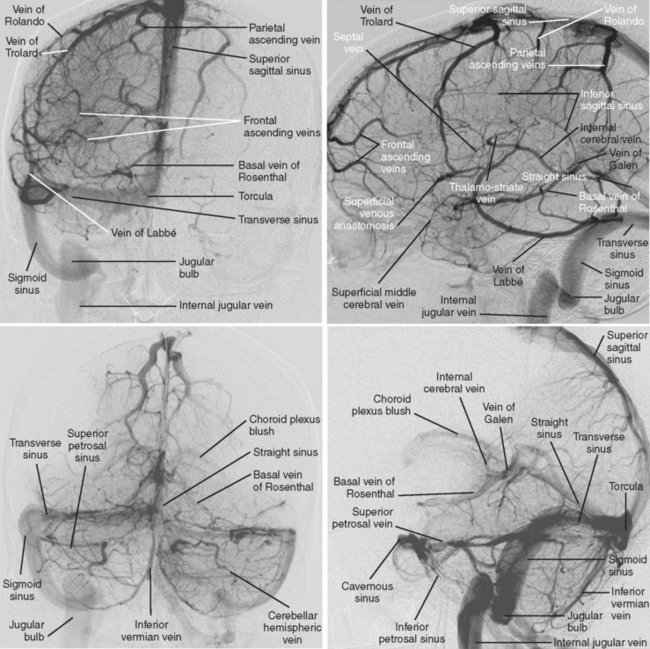 Cerebral Venous Thrombosis | Clinical Gate