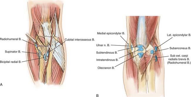 olecranon bursitis corticosteroid injection