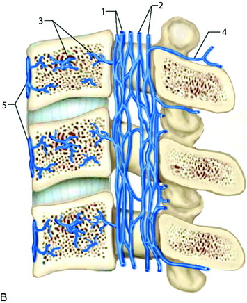 Preoperative and Therapeutic Endovascular Approaches for Spinal ...