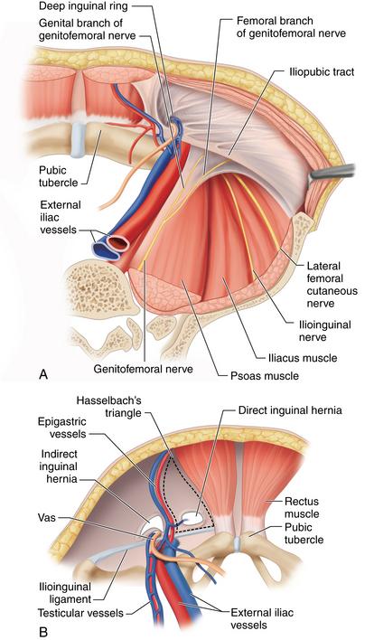 Total extraperitoneal (TEP) hernia repair | Clinical Gate