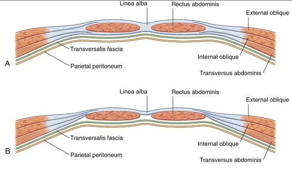 Arcuate line abdomen